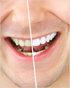 teeth-whitening-238x300