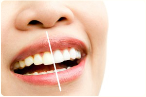 Teeth Whitening Dentist Flossmoor Homewood IL