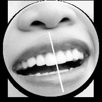 Teeth Whitening Dentists Flossmoor Homewood Illinois IL