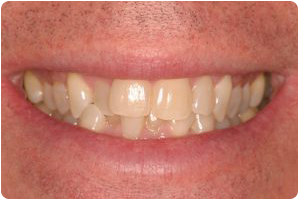 invisalign before photo