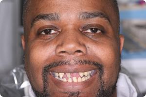 center-for-dental-excellence-flossmoor-dental-implant-patient-before