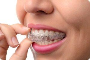 Invisalign Dentist In Flossmoor iL