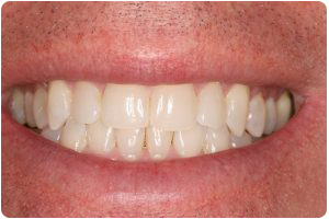 invisalign after photo